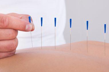 Acupuntura, el arte de las agujas sanadoras
